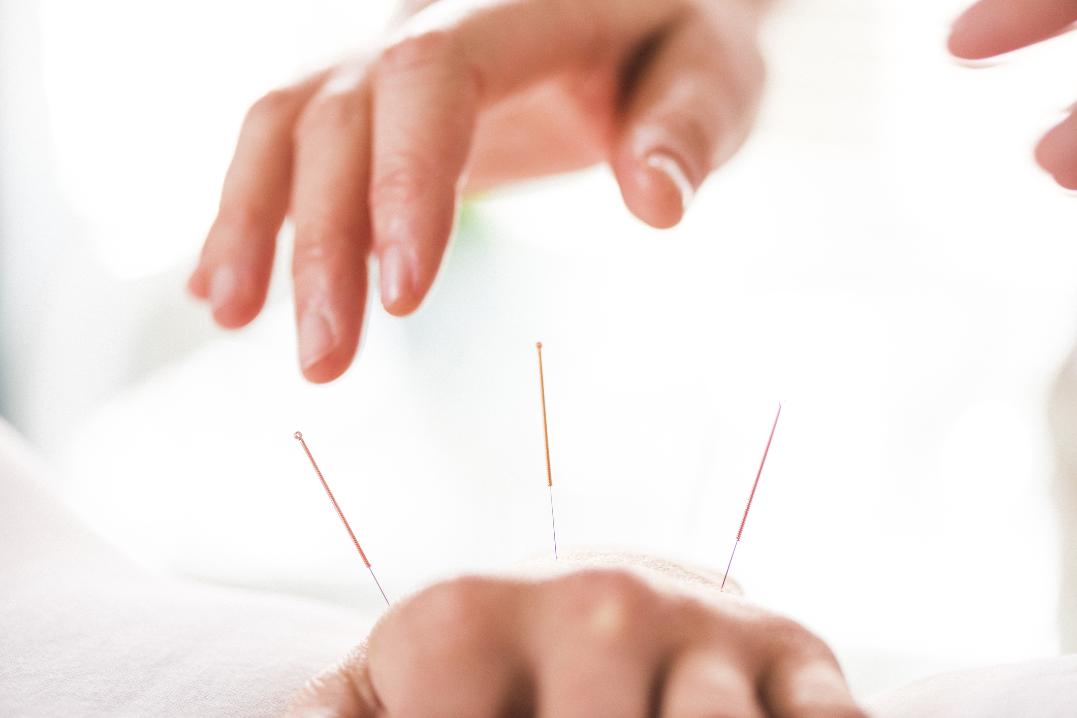 can acupuncture help with fertility issues Can acupuncture help fertility women with fertility issues represent about 70 percent of his ©2018 the center for advanced reproductive services :.